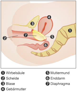 Diaphragm Insertion